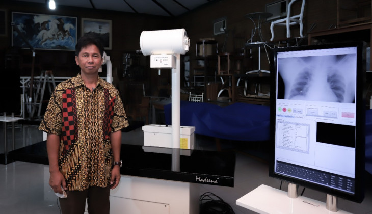 UGM Researcher Develops Covid-19 Detection Tool through Digital Radiography