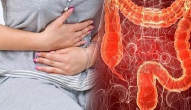 FKKMK UGM Lakukan Pengabdian Masyarakat Deteksi Dini Kanker Kolorektal