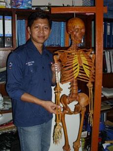 UGM Kembangakan Plat Penyambung Tulang Patah Ukuran Tulang Orang Indonesia