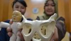 Buat Replika Tulang Panggul Wanita, Karya Mahasiswa UGM ini Banjir Pesanan