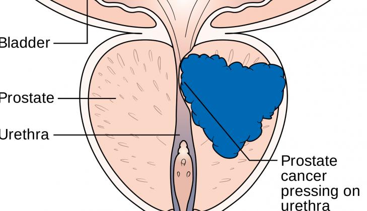 Ilustrasi Kanker Prostat (sumber:sembuhkan-penyakit.blogspot.co.id)